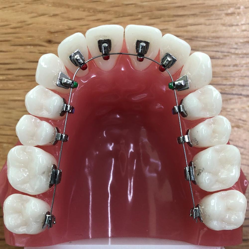舌側矯正の装置