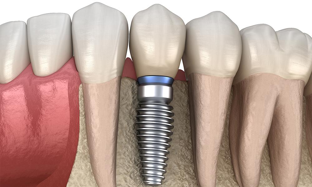 人工歯根として使うインプラント