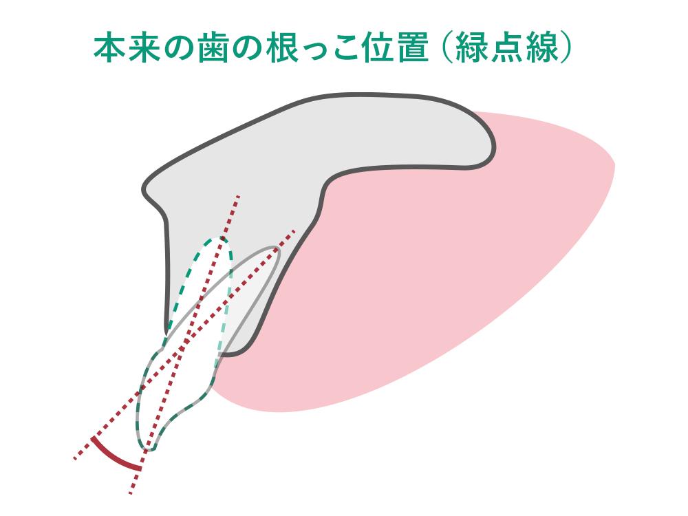 本来の歯の根っこ位置