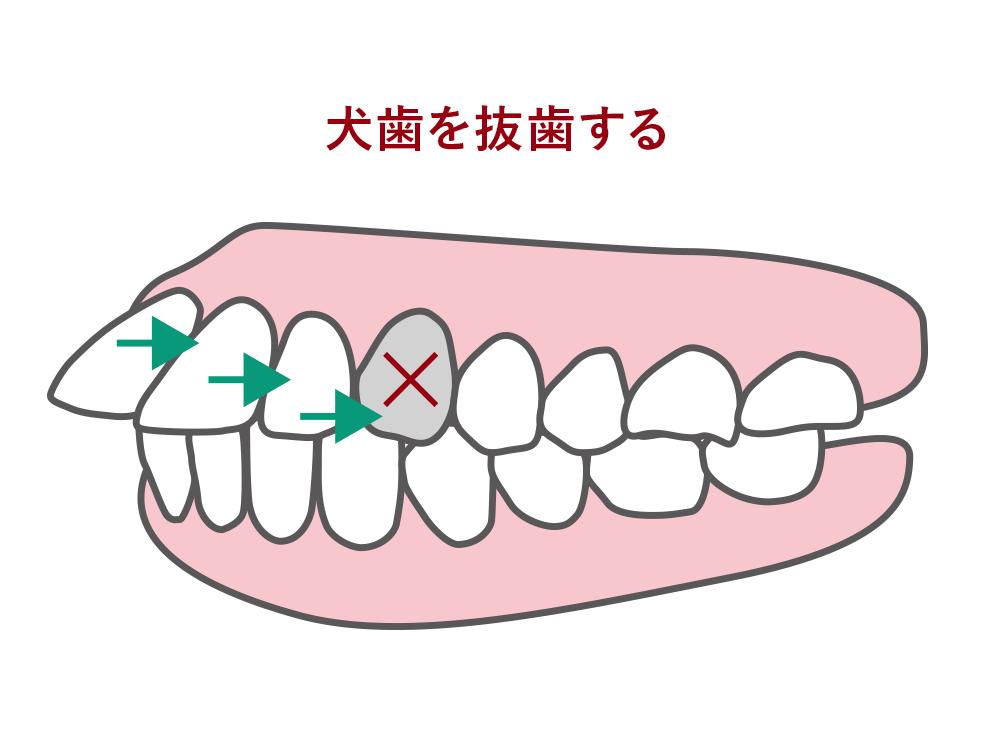 犬歯を抜歯する
