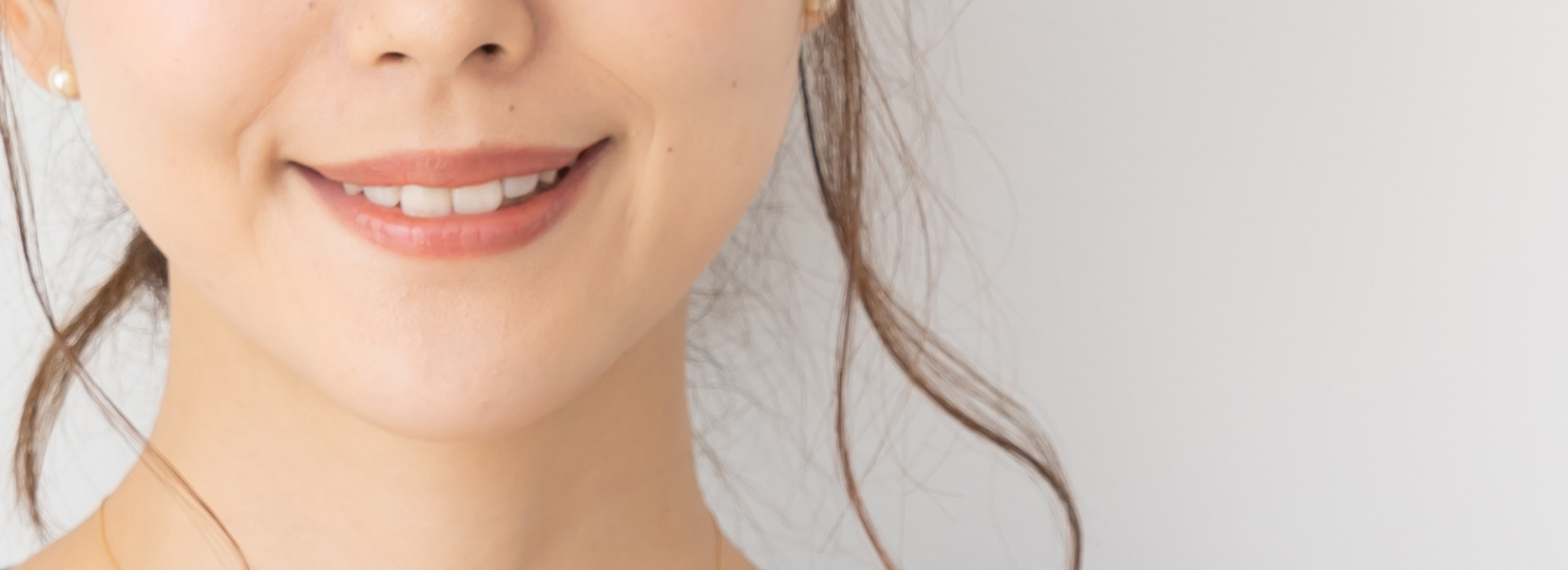 上顎前突で抜歯なしで矯正する方法