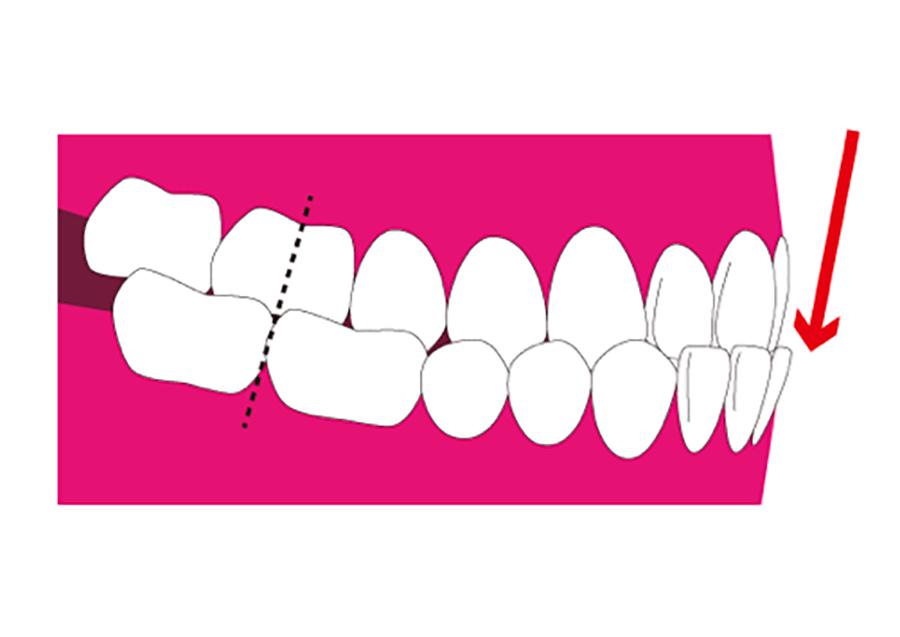 歯性的下顎前突
