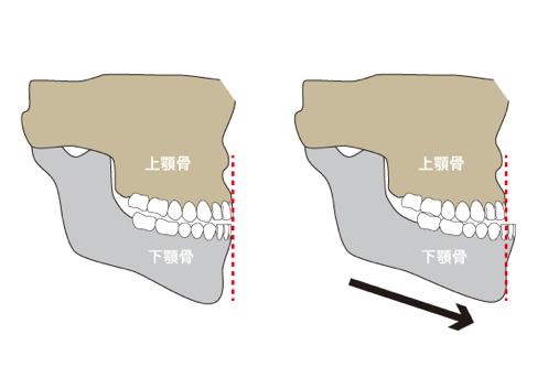 骨格的下顎前突