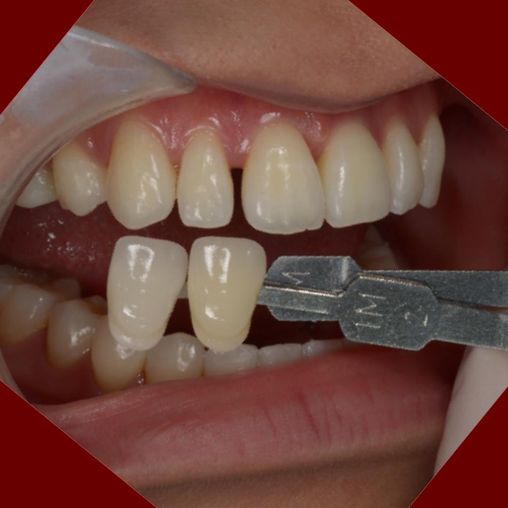 歯の色を確認