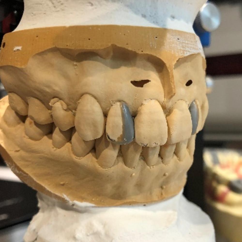 ラミネートべニア製作のため歯型を取ります