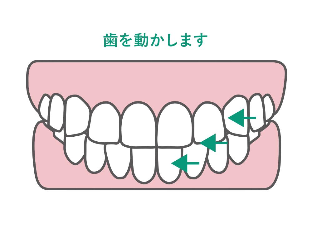 歯を動かします
