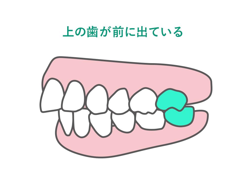 上の歯が前に出ている