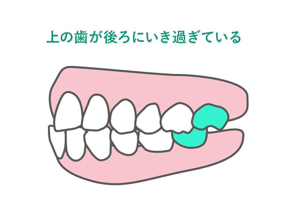 上の歯が後ろにいき過ぎている