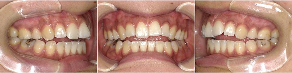 出っ歯の症例画像