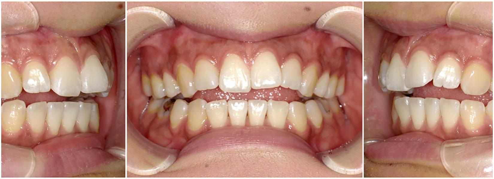 舌癖で出っ歯になるって本当?