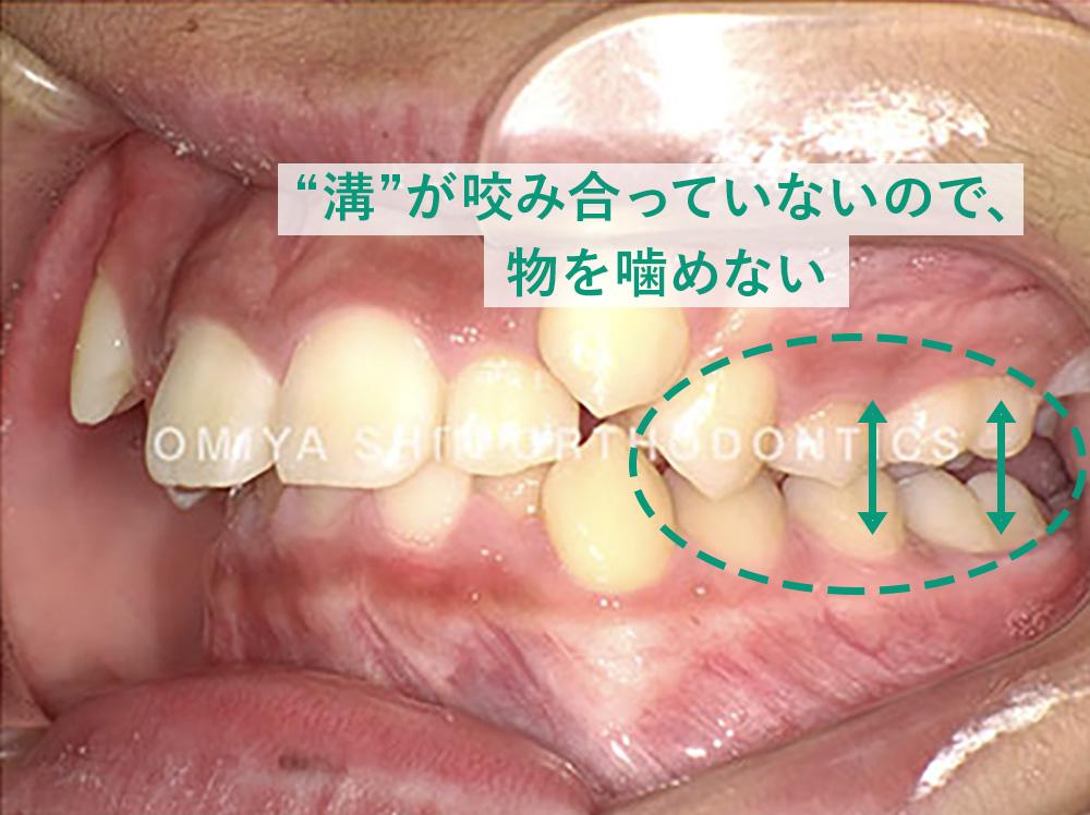 歯の溝が咬み合っていないので、物を噛めない状態