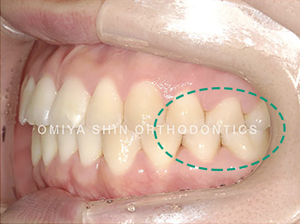 奥歯のI級関係(いっきゅうかんけい)の状態