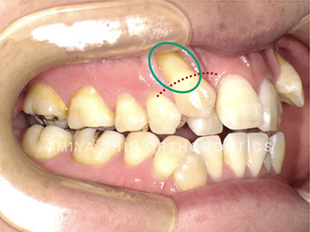 歯肉退縮が進み、歯根(歯の根)が露出した状態