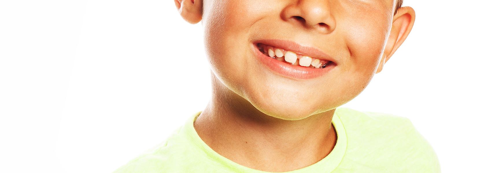 すきっ歯・空隙歯列なら部分矯正で矯正できる?
