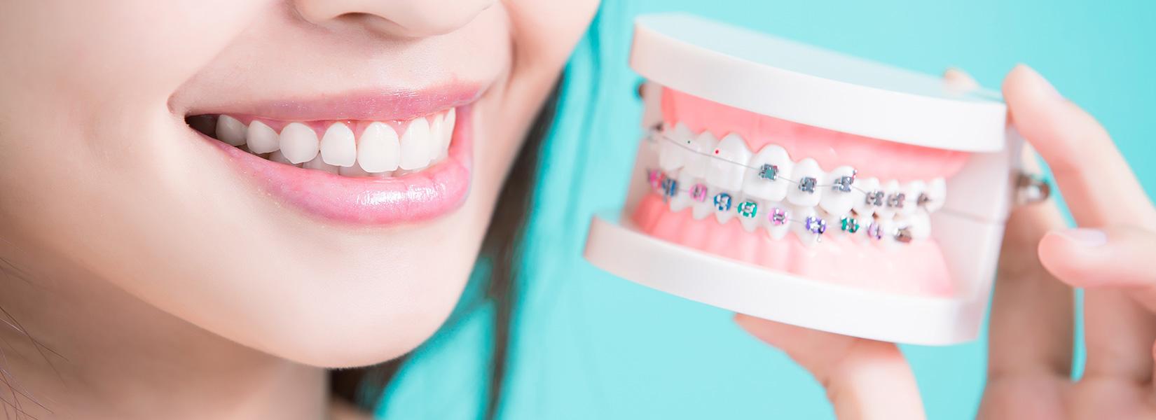 歯の矯正で行う結紮とは?