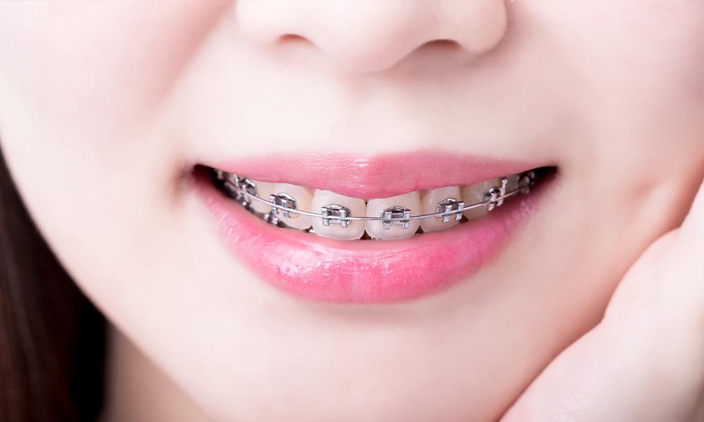 1つ1つの歯にアプローチする成人矯正