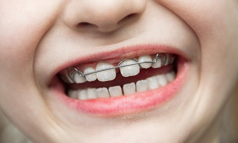 骨格や歯列にアプローチする小児矯正