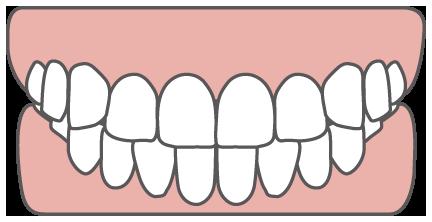 歯がかみ合っている状態