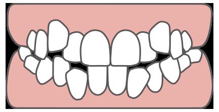 歯列と歯の大きさのバランスが悪い状態