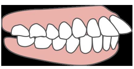 子どもの出っ歯
